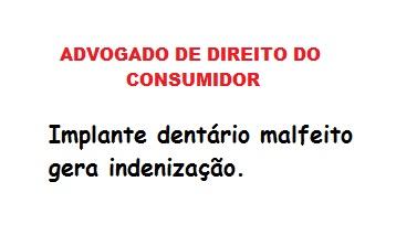 advogado de direito do consumidor - RJ